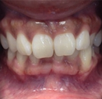 patient's teeth before