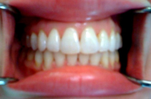 patient's teeth after